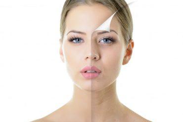 Redukcja pigmentacji
